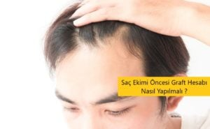 Saç Ekimi Öncesi Graft Hesabı Nasıl Yapılmalı