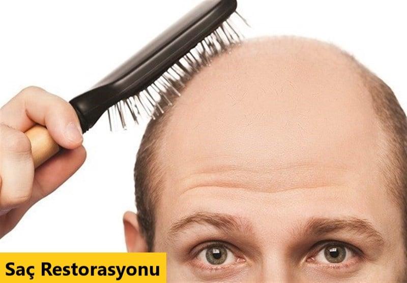 Saç Restorasyonu